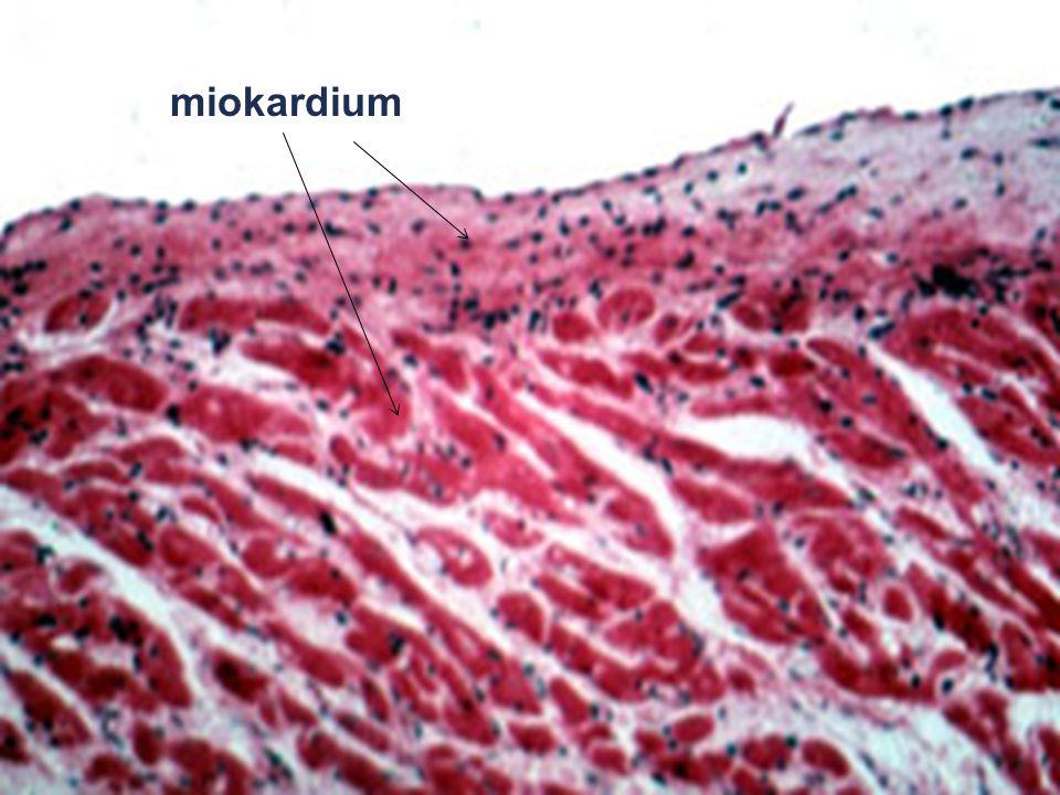 miokardium
