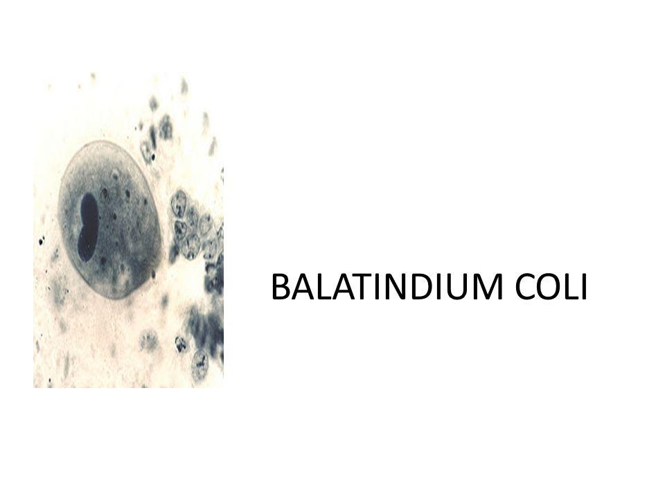 BALATINDIUM COLI