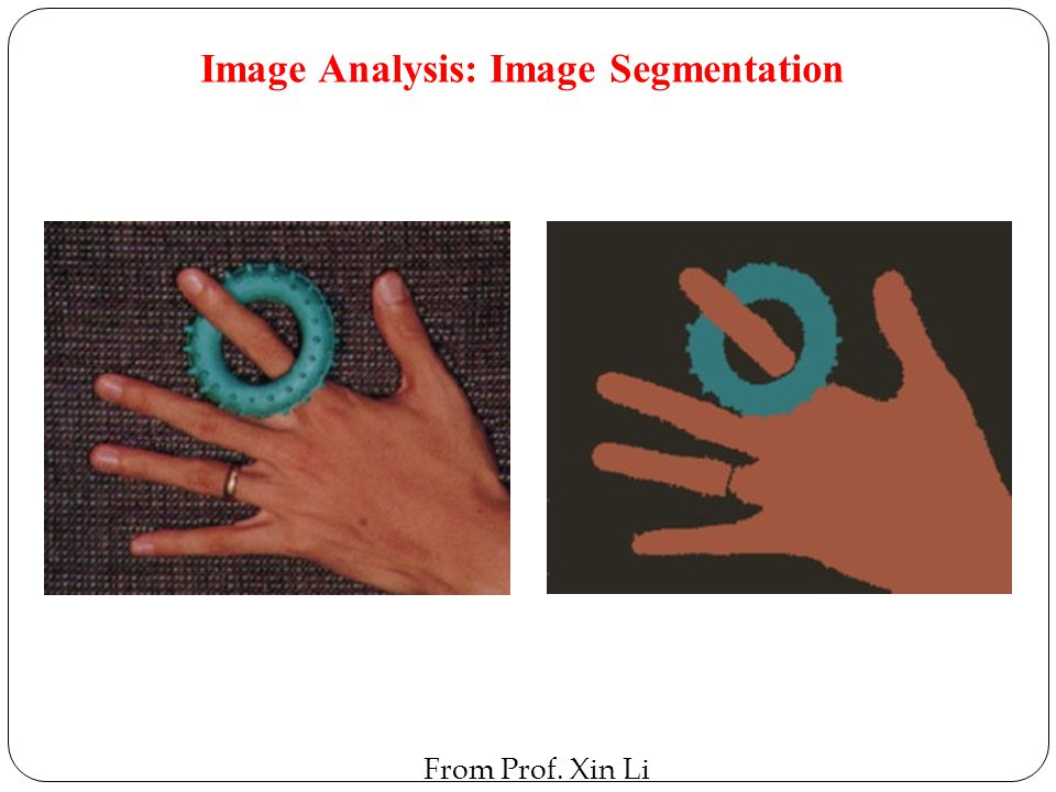 Image Analysis: Image Segmentation