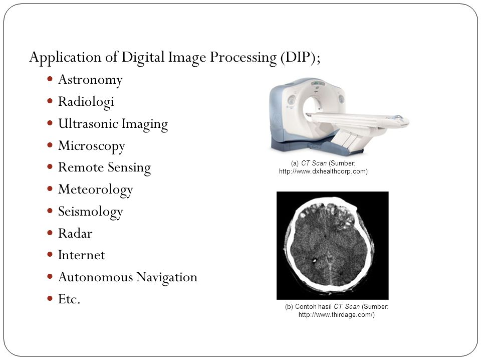 Application of Digital Image Processing (DIP);
