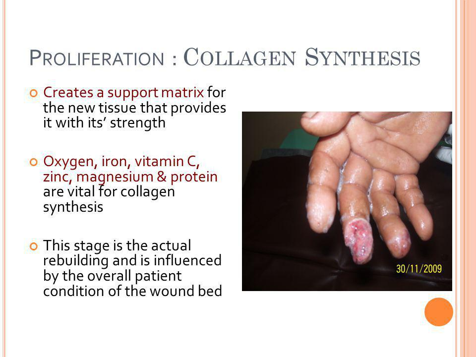 Proliferation : Collagen Synthesis