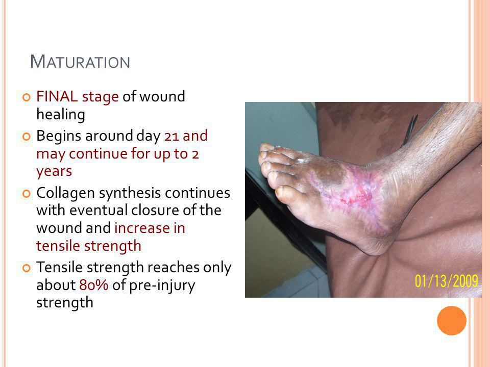 Maturation FINAL stage of wound healing