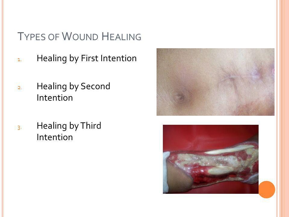 Types of Wound Healing Healing by First Intention
