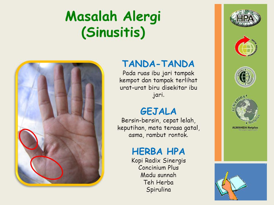 Masalah Alergi (Sinusitis)