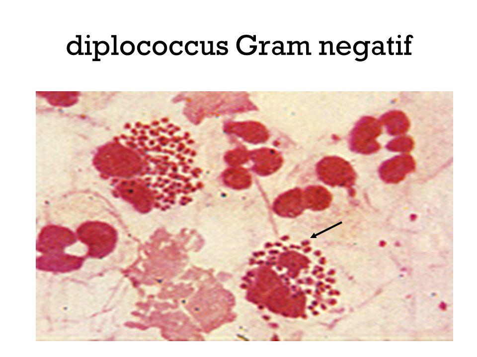 diplococcus Gram negatif