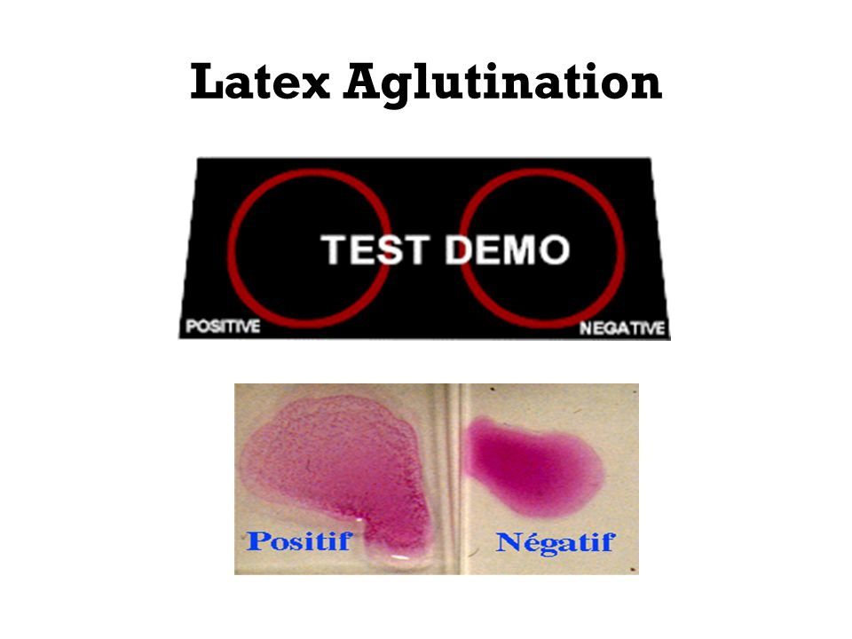 Latex Aglutination