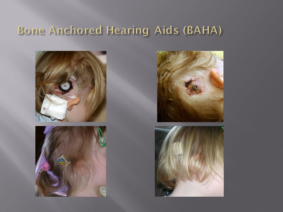 Bone Anchored Hearing Aids (BAHA)