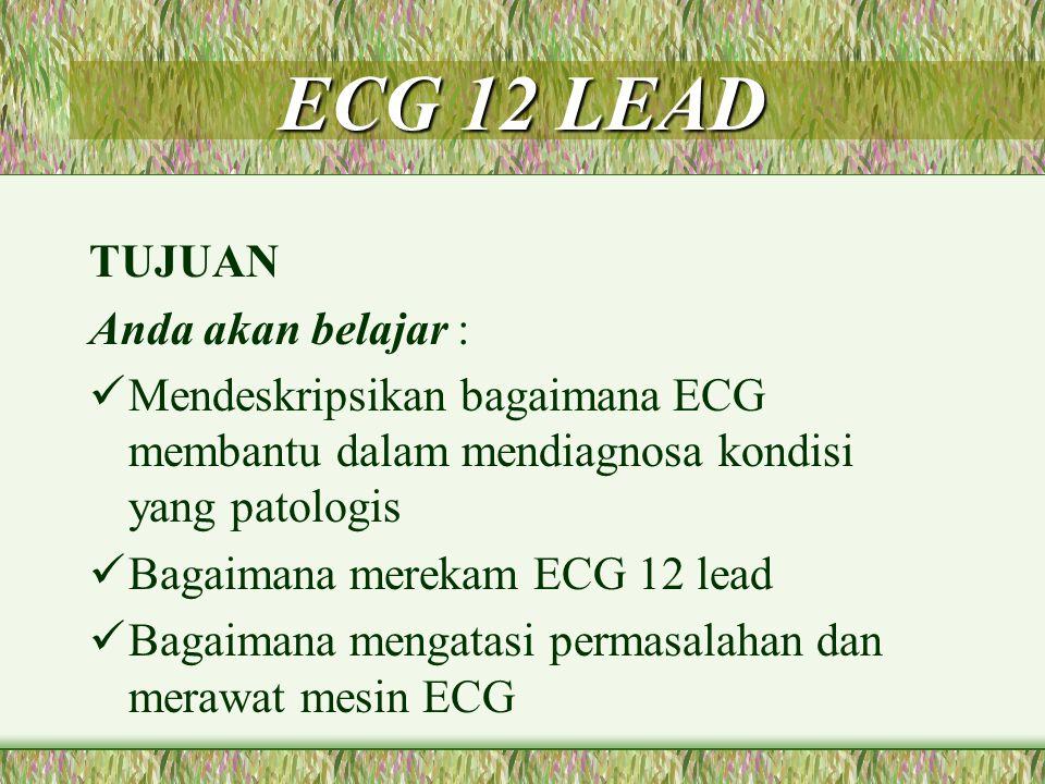 ECG 12 LEAD TUJUAN Anda akan belajar :