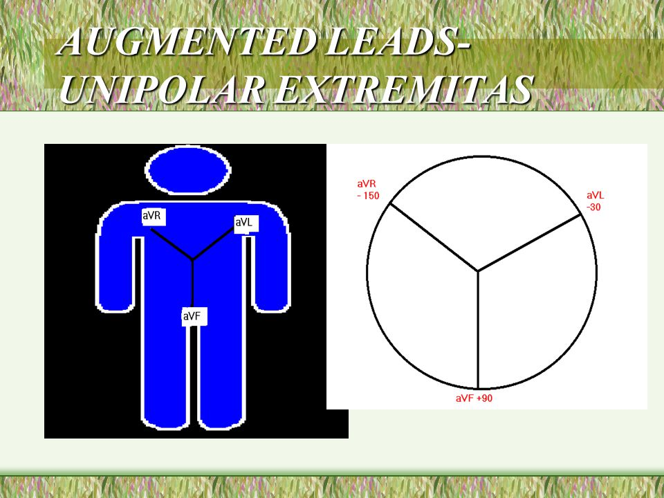 AUGMENTED LEADS- UNIPOLAR EXTREMITAS