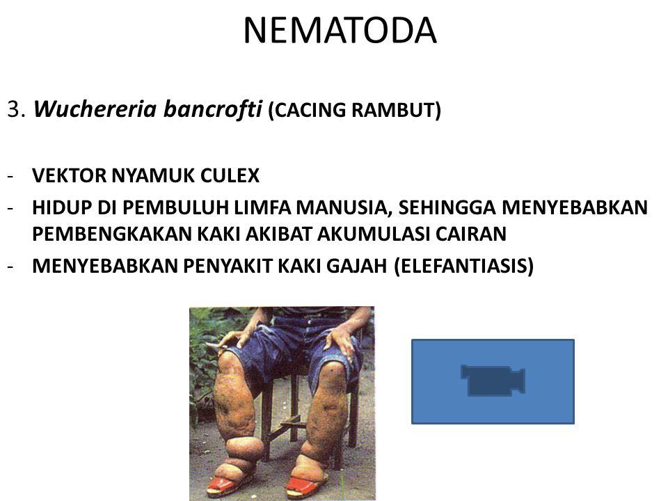 NEMATODA 3. Wuchereria bancrofti (CACING RAMBUT) VEKTOR NYAMUK CULEX