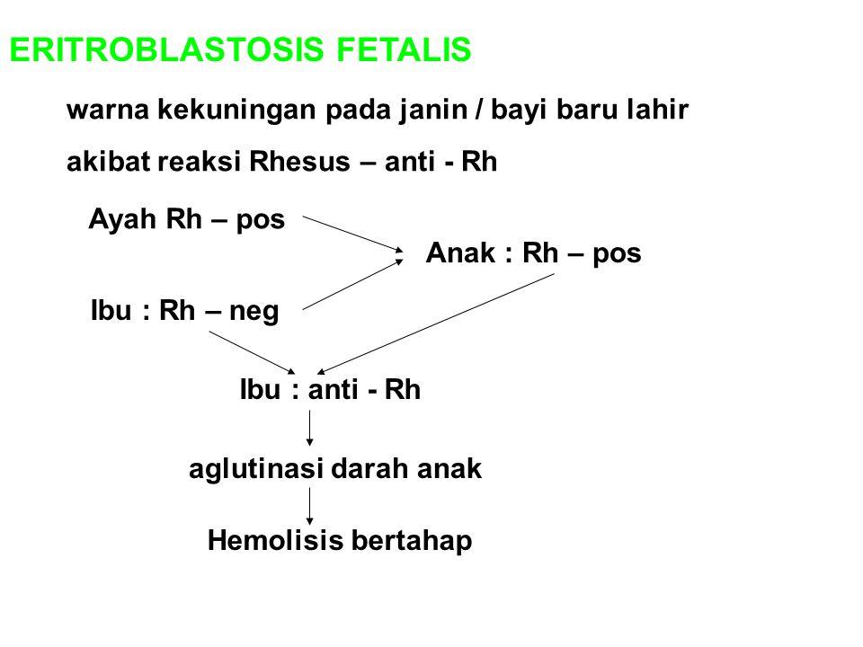 ERITROBLASTOSIS FETALIS