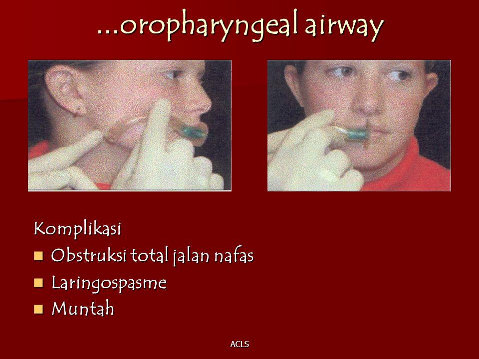 …oropharyngeal airway