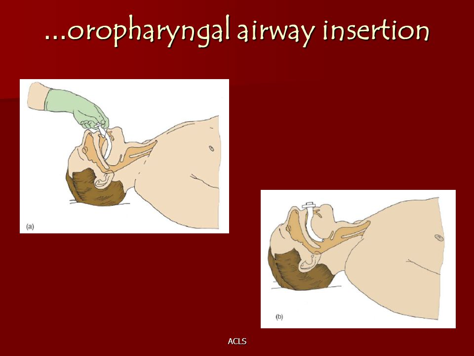 …oropharyngal airway insertion