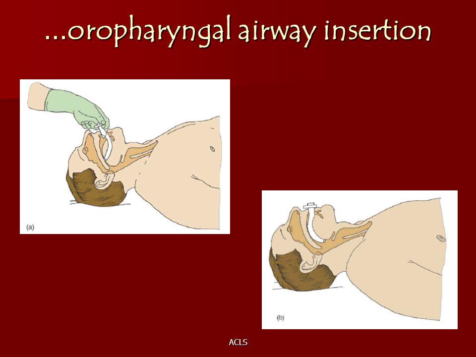 …oropharyngal airway insertion