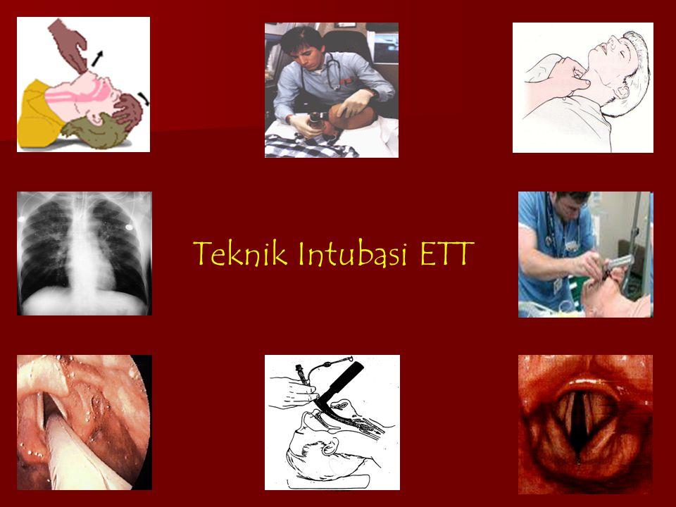 Teknik Intubasi ETT