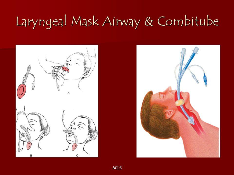 Laryngeal Mask Airway & Combitube