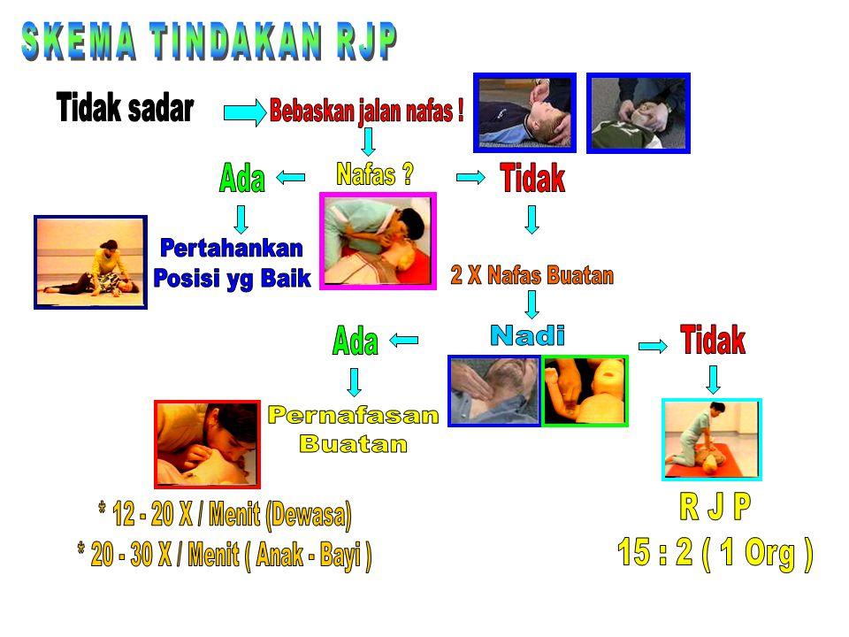 * 20 - 30 X / Menit ( Anak - Bayi )