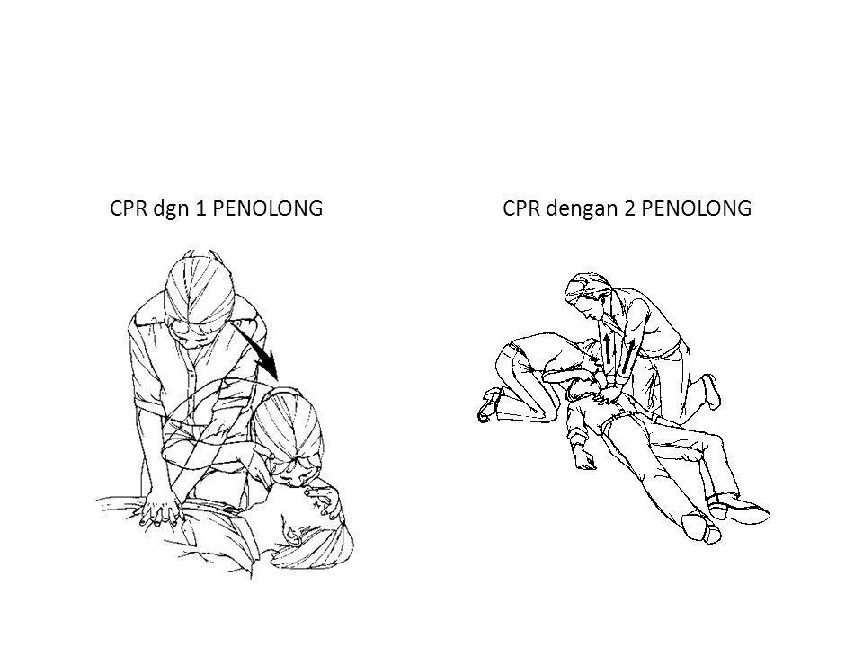 CPR dgn 1 PENOLONG CPR dengan 2 PENOLONG