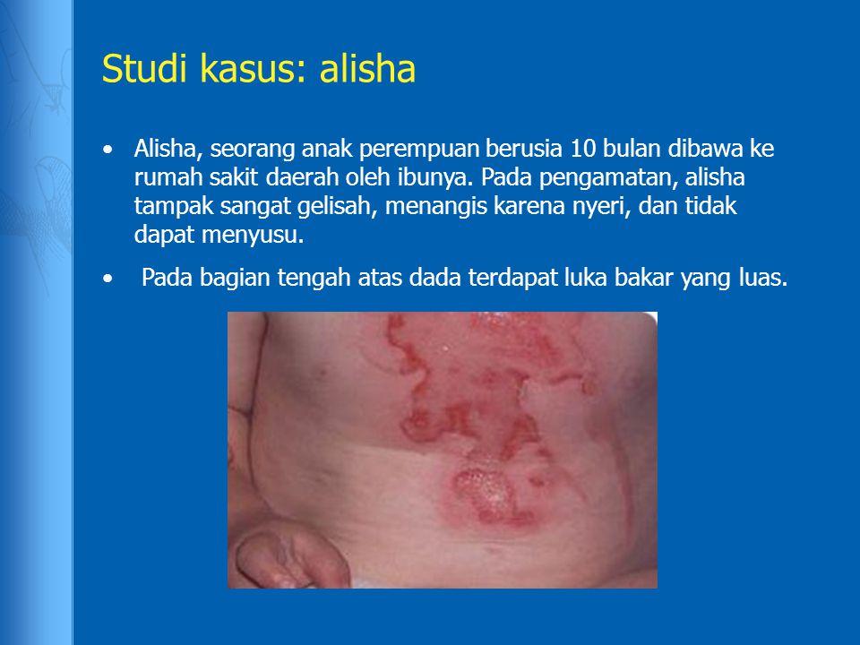 Studi kasus: alisha