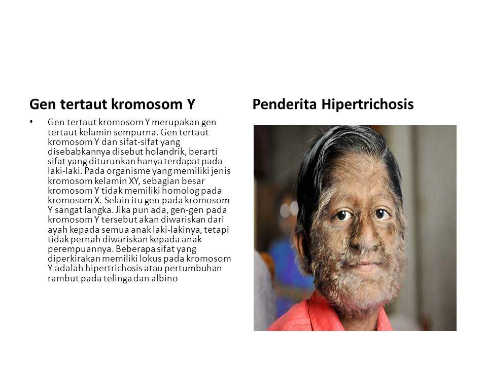 Penderita Hipertrichosis