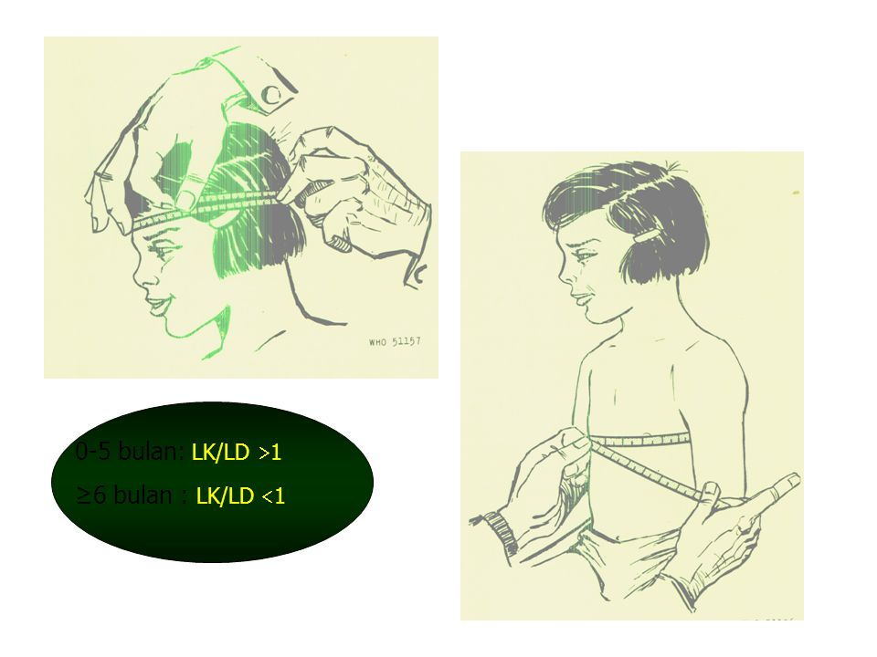 0-5 bulan: LK/LD 1 ≥6 bulan : LK/LD 1