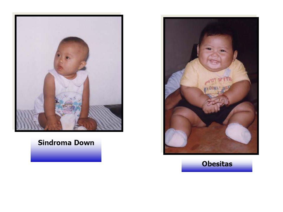 Sindroma Down Obesitas