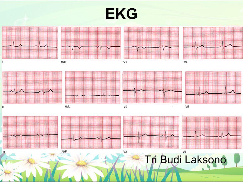 EKG Tri Budi Laksono