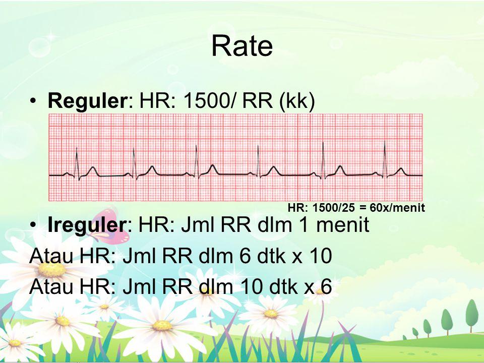 Rate Reguler: HR: 1500/ RR (kk) Ireguler: HR: Jml RR dlm 1 menit