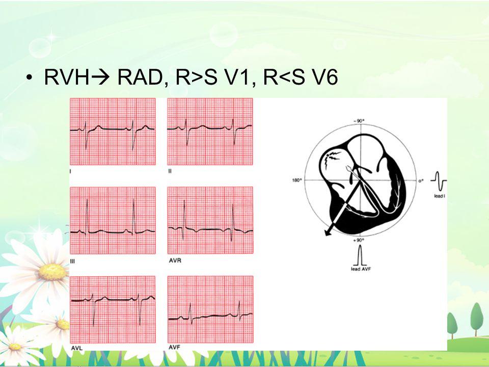 RVH RAD, R>S V1, R<S V6