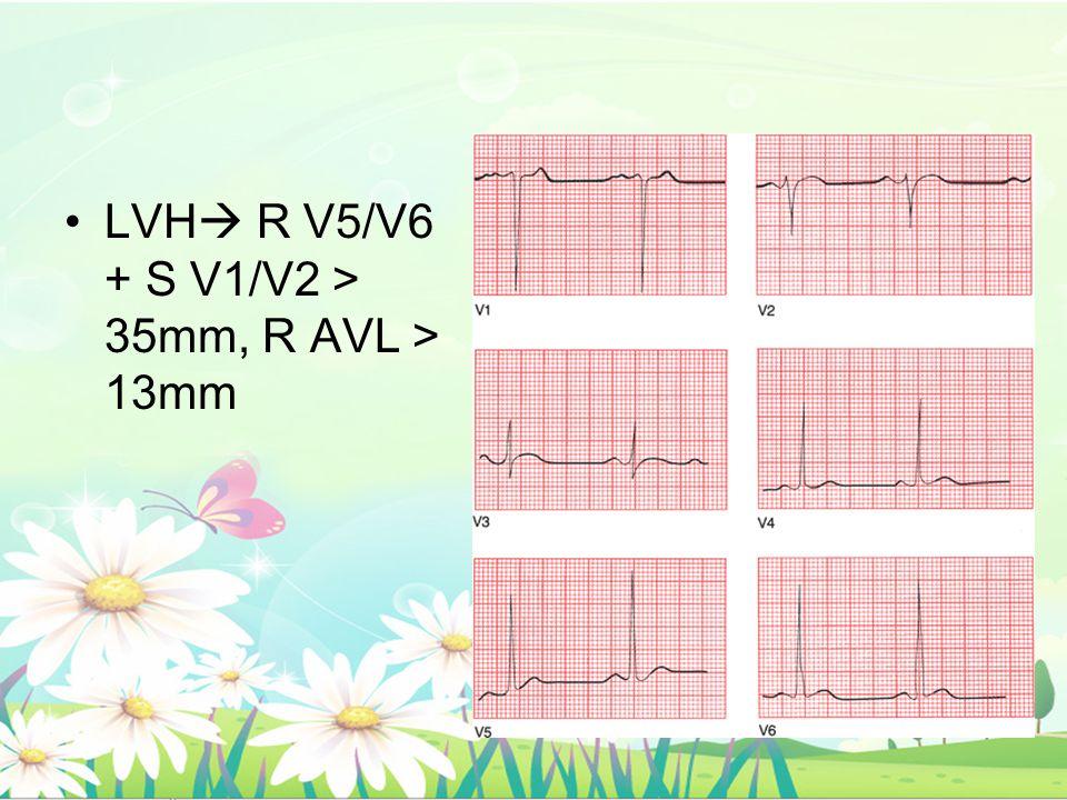 LVH R V5/V6 + S V1/V2 > 35mm, R AVL > 13mm