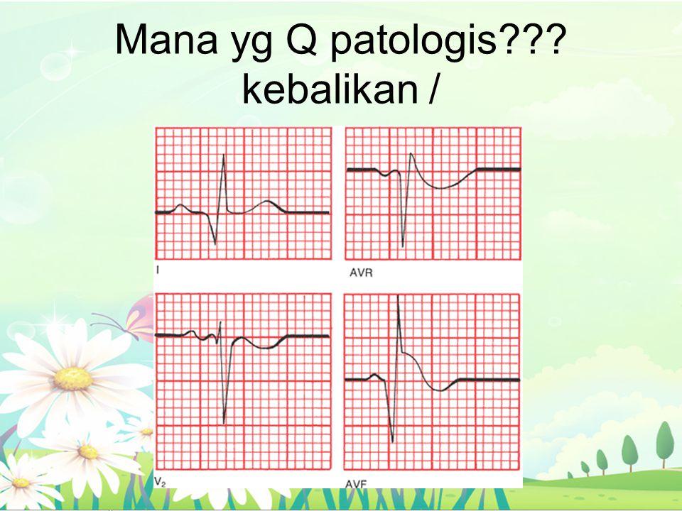 Mana yg Q patologis kebalikan /
