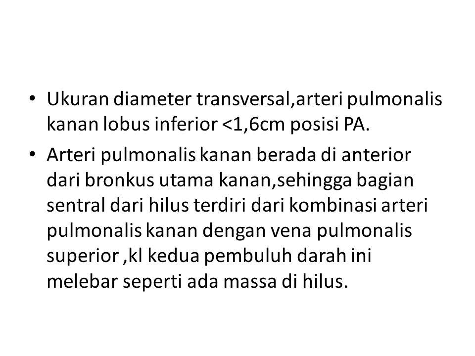 Ukuran diameter transversal,arteri pulmonalis kanan lobus inferior <1,6cm posisi PA.