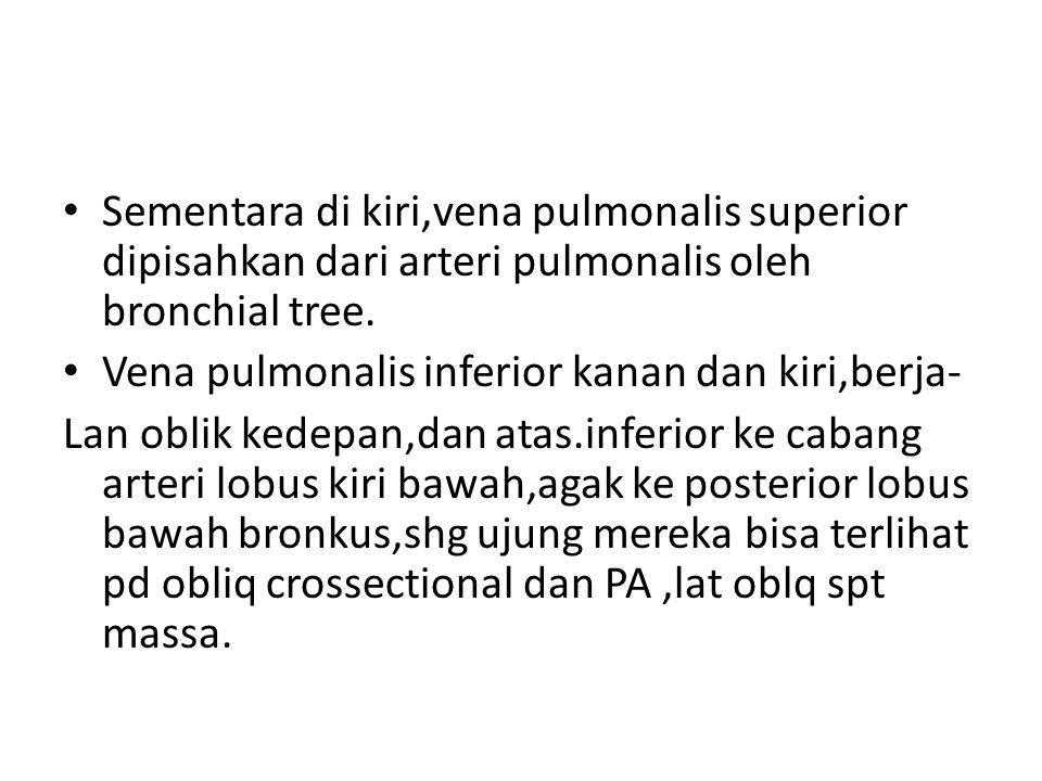 Sementara di kiri,vena pulmonalis superior dipisahkan dari arteri pulmonalis oleh bronchial tree.