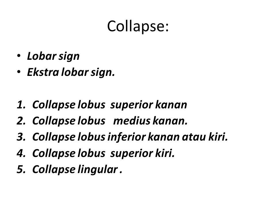 Collapse: Lobar sign Ekstra lobar sign. Collapse lobus superior kanan
