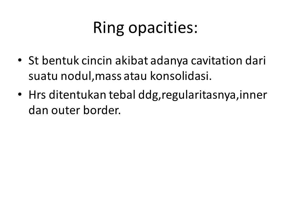 Ring opacities: St bentuk cincin akibat adanya cavitation dari suatu nodul,mass atau konsolidasi.