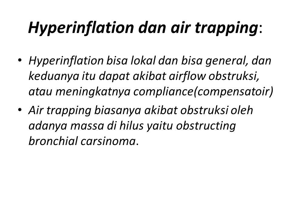Hyperinflation dan air trapping: