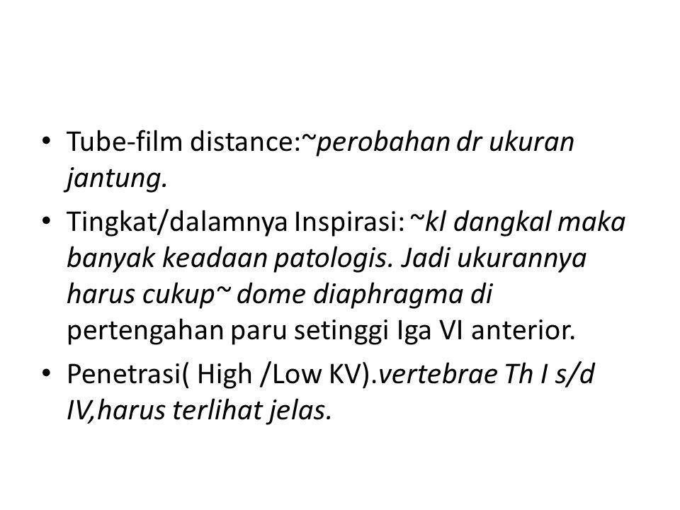 Tube-film distance:~perobahan dr ukuran jantung.