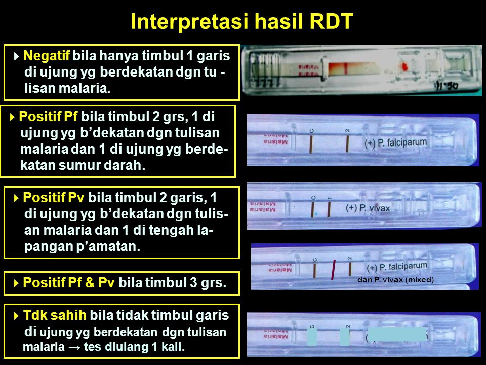 Interpretasi hasil RDT