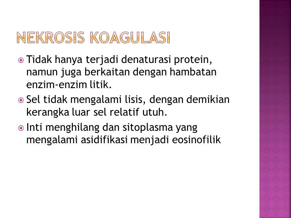 Nekrosis koagulasi Tidak hanya terjadi denaturasi protein, namun juga berkaitan dengan hambatan enzim-enzim litik.