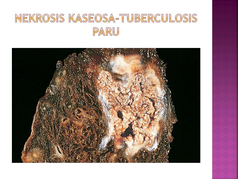 NEKROSIS KASEOSA-TUBERCULOSIS PARU