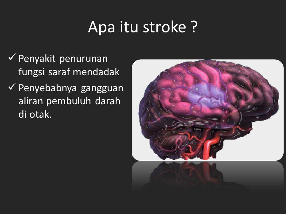 Apa itu stroke Penyakit penurunan fungsi saraf mendadak