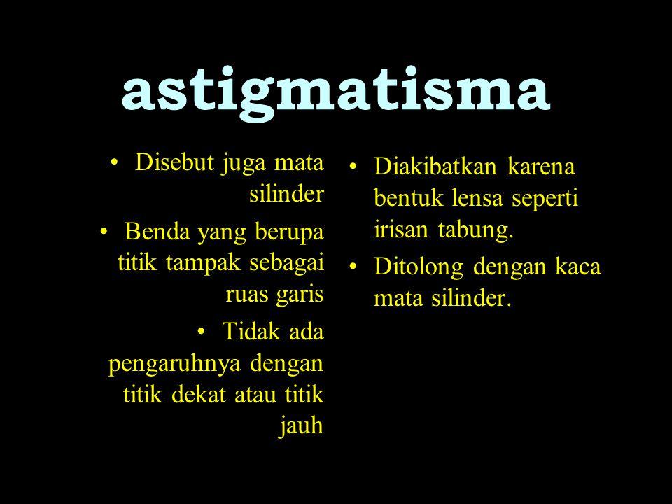 astigmatisma Disebut juga mata silinder