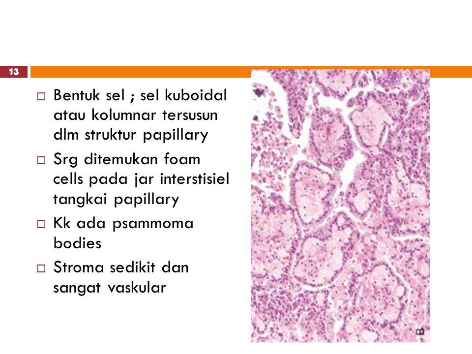 Srg ditemukan foam cells pada jar interstisiel tangkai papillary