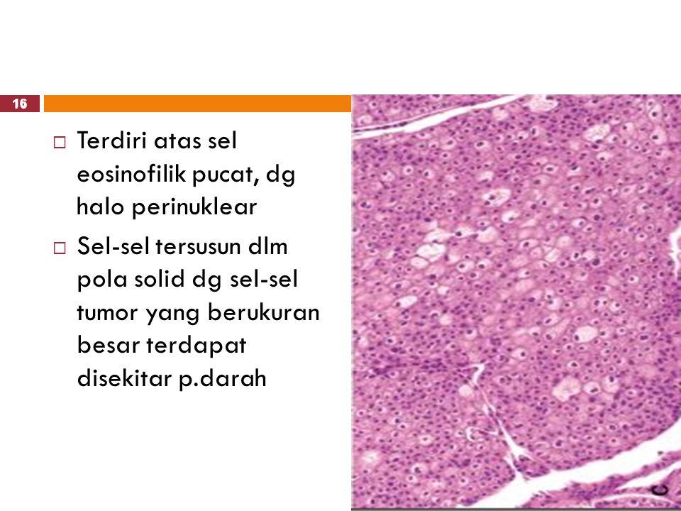 Terdiri atas sel eosinofilik pucat, dg halo perinuklear