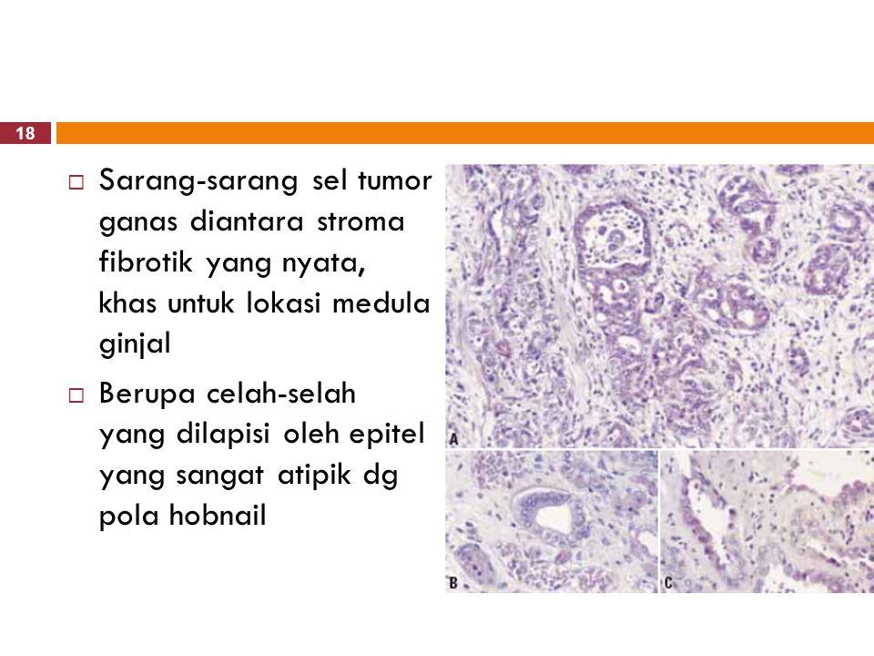 Sarang-sarang sel tumor ganas diantara stroma fibrotik yang nyata, khas untuk lokasi medula ginjal