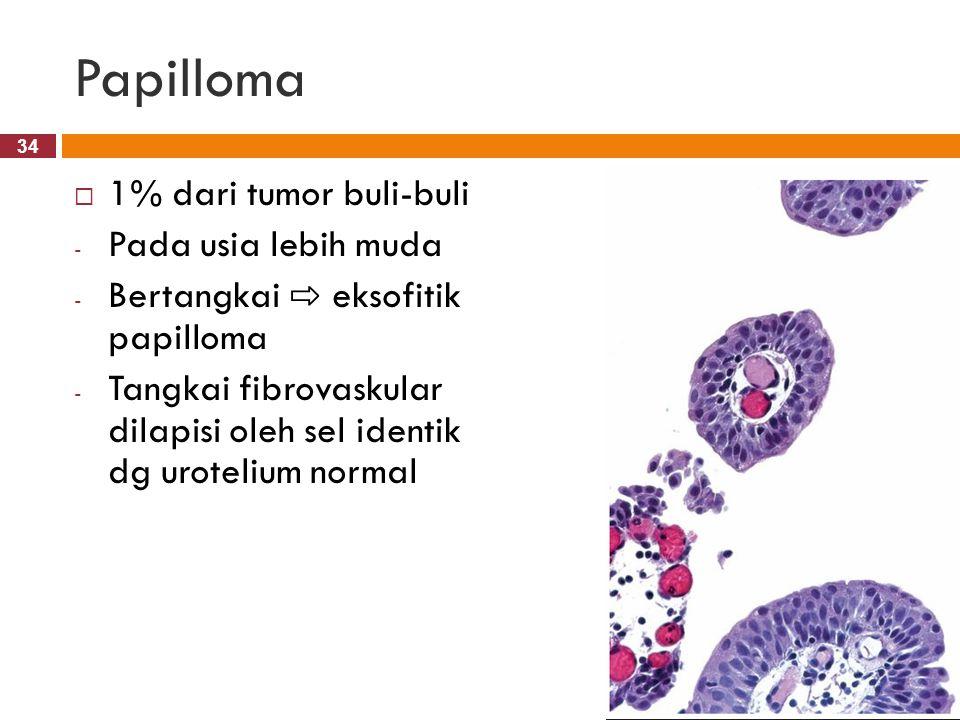 Papilloma 1% dari tumor buli-buli Pada usia lebih muda