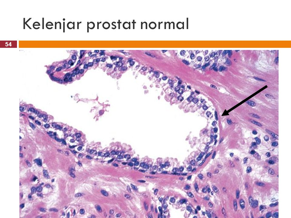 Kelenjar prostat normal