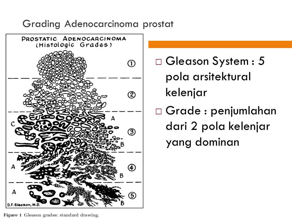 Grading Adenocarcinoma prostat