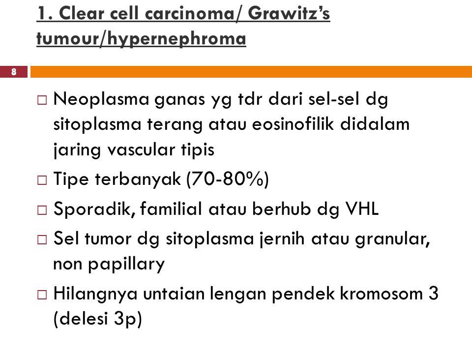 1. Clear cell carcinoma/ Grawitz's tumour/hypernephroma