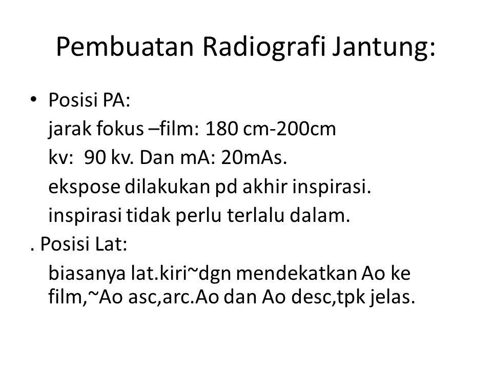 Pembuatan Radiografi Jantung: